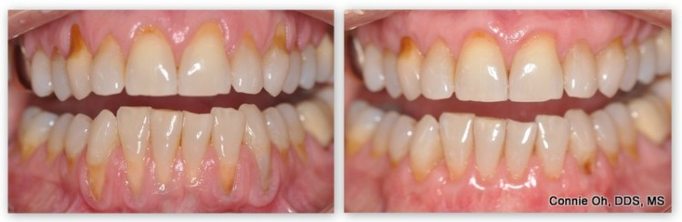 Before & after upper & lower gum grafts