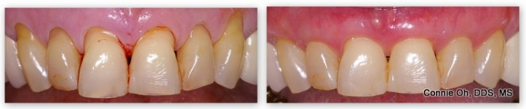 Before & after gum grafting