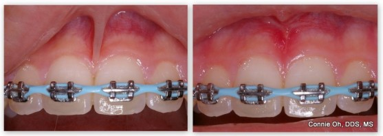 Before & after upper frenectomy